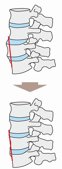 背骨矯正のビフォーアフター